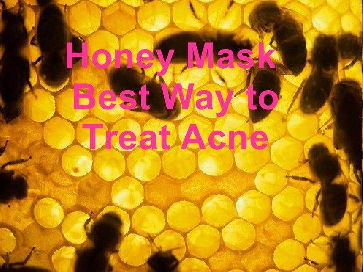 Honey Mask  Best Way to Treat Acne