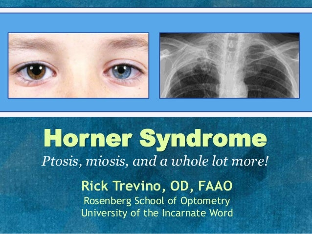 Horner SyndromePtosis, miosis, and a whole lot more!Rick Trevino, OD, FAAORosenberg School of OptometryUniversity of the I...