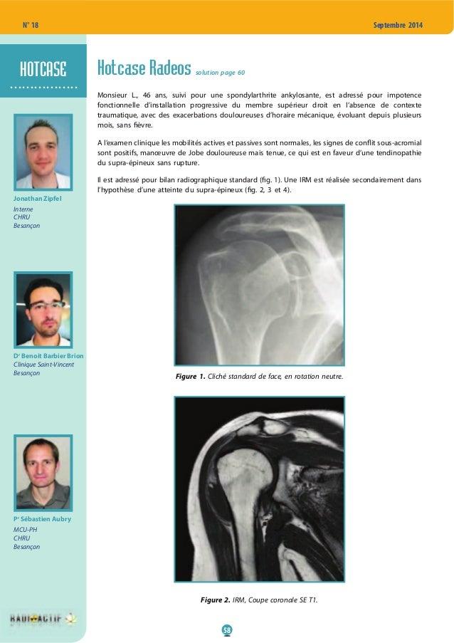 58 N° 18 Septembre 2014 Hotcase Radeos solution page 60 Monsieur L., 46 ans, suivi pour une spondylarthrite ankylosante, e...