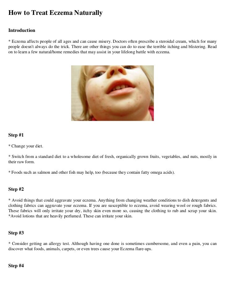 How to Treat Eczema NaturallyIntroduction* Eczema affects people of all ages and can cause misery. Doctors often prescribe...