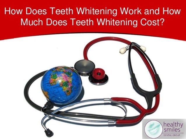 How Does Teeth Whitening Work and How Much Does Teeth Whitening Cost?
