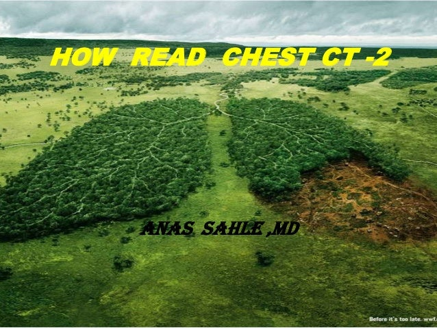 HOW READ CHEST CT -2     ANAS SAHLE ,MD