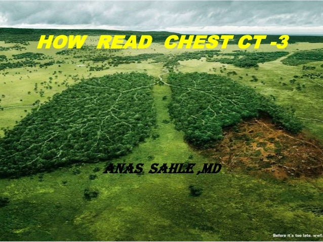 HOW READ CHEST CT -3     ANAS SAHLE ,MD
