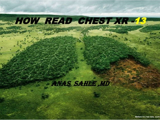 HOW READ CHEST XR -13     ANAS SAHLE ,MD