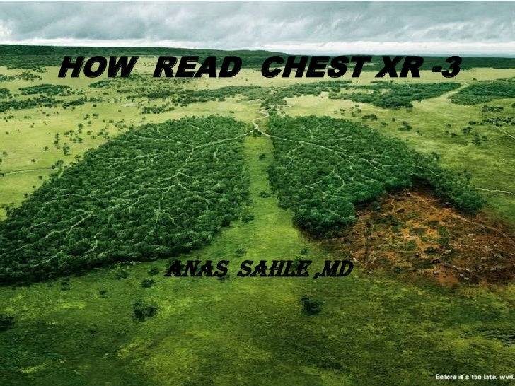 HOW READ CHEST XR -3     ANAS SAHLE ,MD