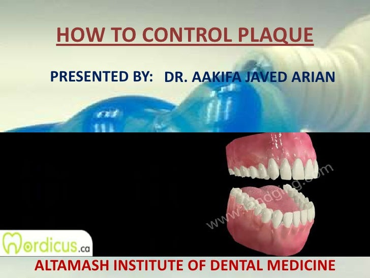 HOW TO CONTROL PLAQUE<br />PRESENTED BY:<br />DR. AAKIFA JAVED ARIAN<br />ALTAMASH INSTITUTE OF DENTAL MEDICINE<br />