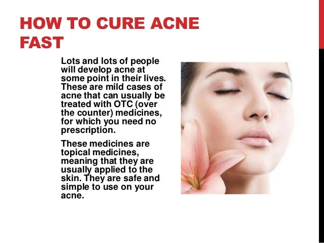 How To Treat Acnes