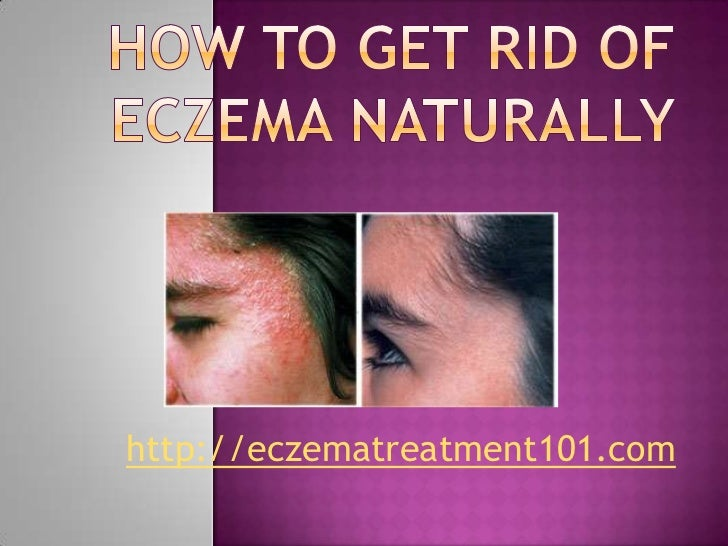 How to get rid of eczema naturally