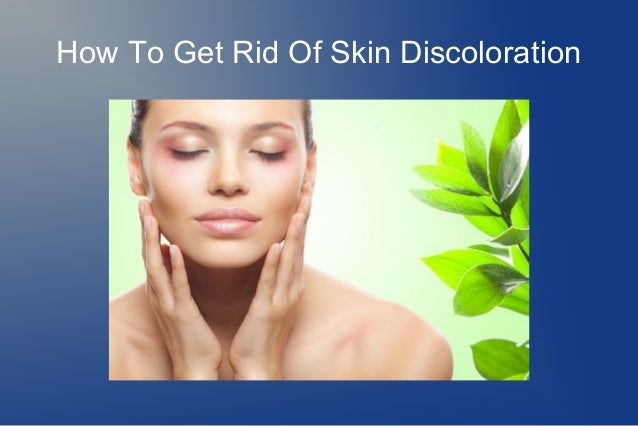 How To Get Rid Of Skin Discoloration