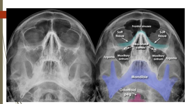 MRI and CT Scans of the Head and Brain CPT code list