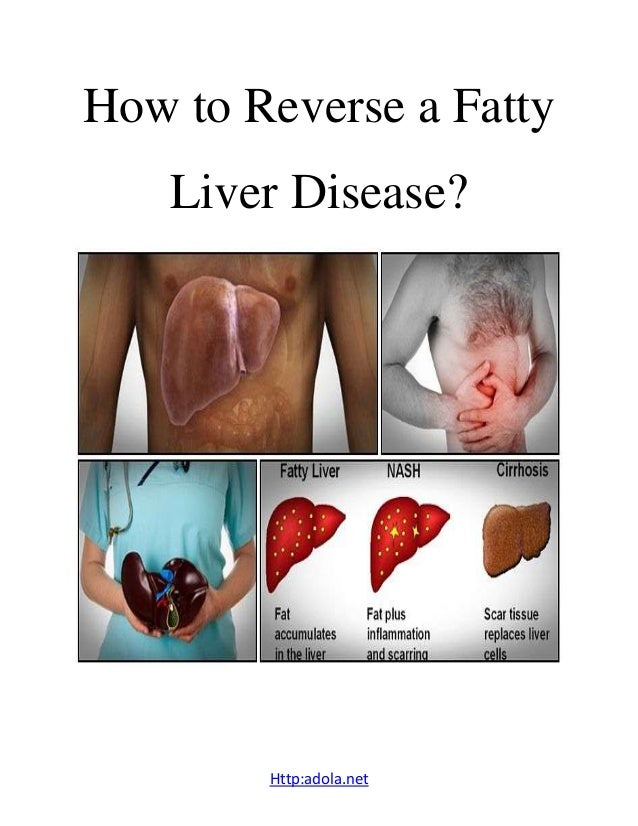How to reverse a fatty liver disease?