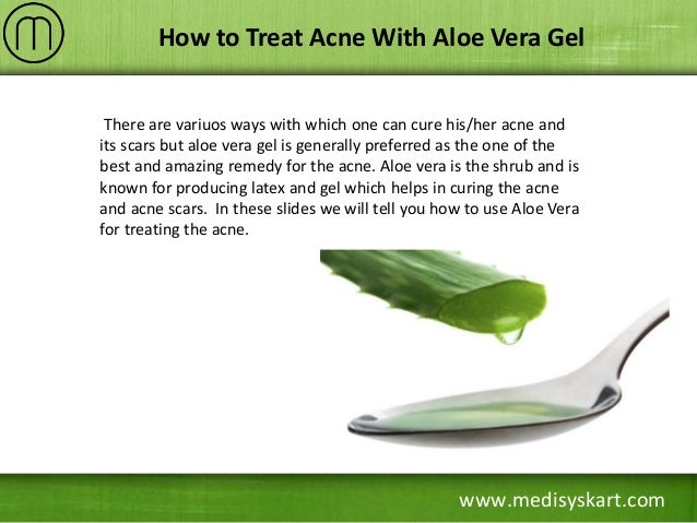 Is Aloe Vera Good For Acne