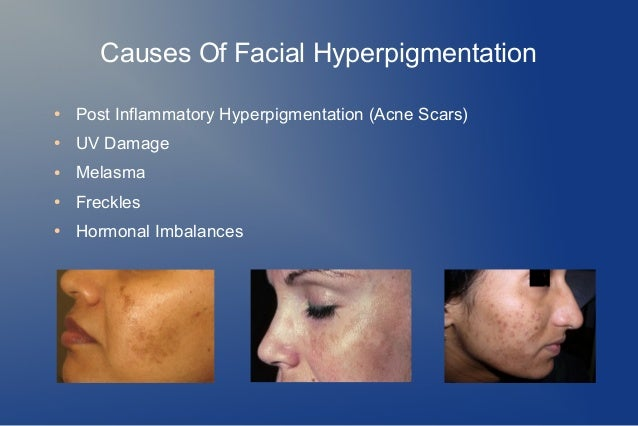 Causes of melasma Causes of melasma new photo