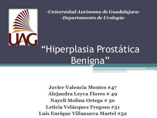 "-Universidad Autónoma de Guadalajara-        -Departamento de Urología-""Hiperplasia Prostática      Benigna""    Javier Val..."
