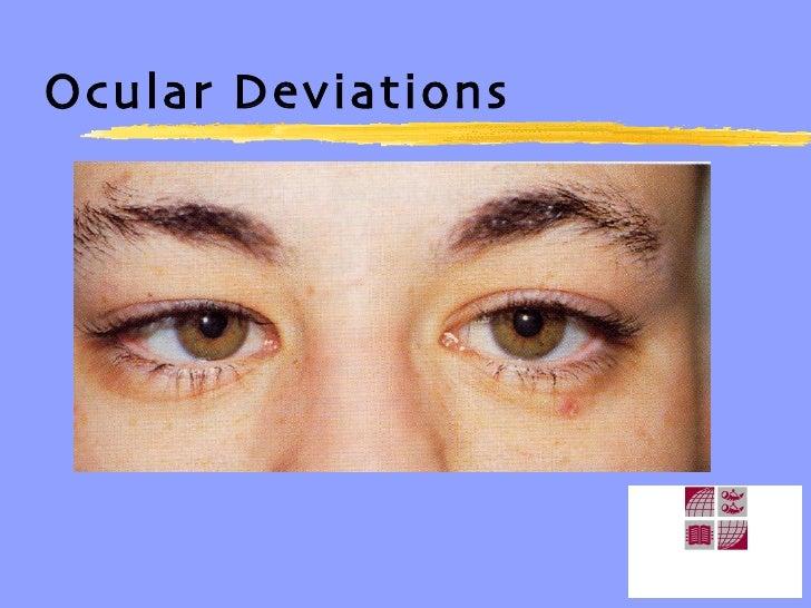 ocular Deviations