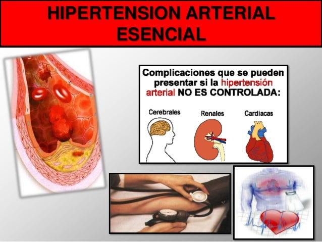 HIPERTENSION ARTERIAL      ESENCIAL