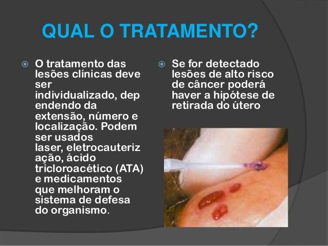 HPV Tem Cura? - O que o V rus 28