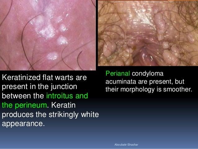 Genital warts labia