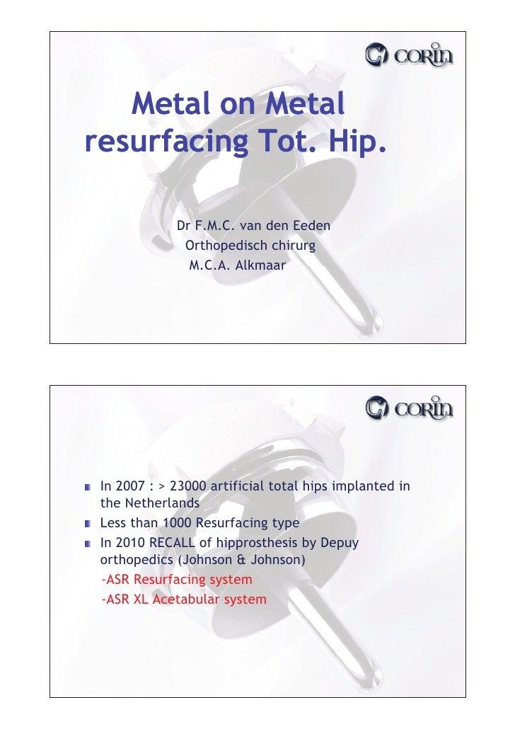 Metal on Metal resurfacing Tot. Hip.               Dr F M C van den Eeden                 F.M.C.               Orthopedisc...