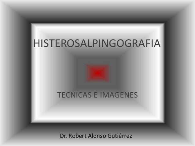 HISTEROSALPINGOGRAFIA TECNICAS E IMAGENES Dr. Robert Alonso Gutiérrez