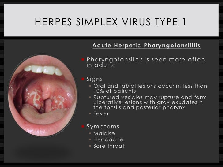 Dating with herpes 1