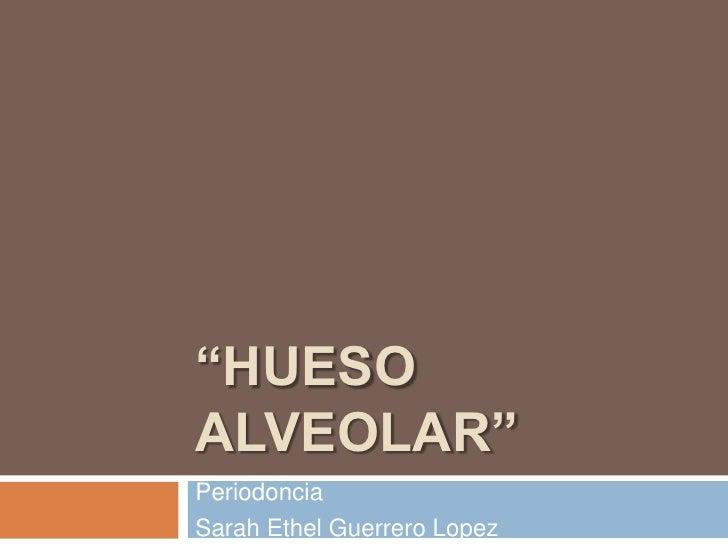 """HUESO ALVEOLAR""<br />Periodoncia<br />Sarah Ethel Guerrero Lopez<br />"