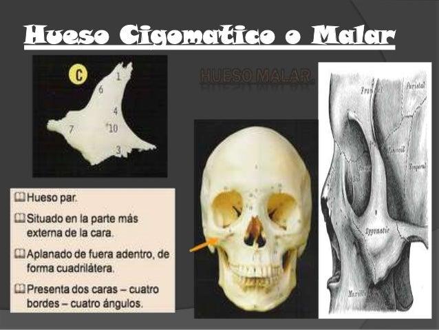 Hueso Cigomatico o Malar