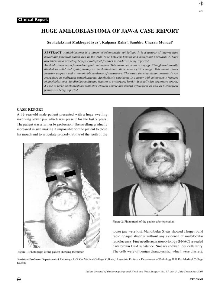 247 Clinical Report                   HUGE AMELOBLASTOMA OF JAW-A CASE REPORT                       Subhalakshmi Mukhopadh...