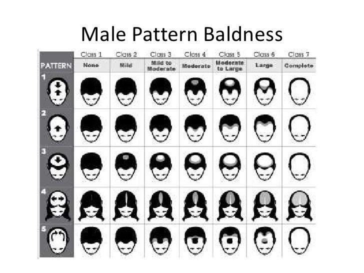 Male Pattern Baldness Genetics Human Genetic Inheritance