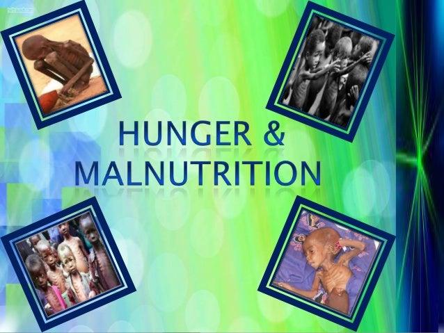 Hunger & malnutrition1