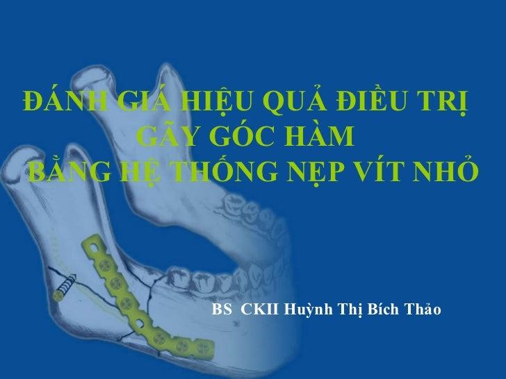 ĐÁNH GIÁ HIỆU QUẢ ĐIỀU TRỊ  GÃY GÓC HÀM  BẰNG HỆ THỐNG NẸP VÍT NHỎ   BS  CKII Huỳnh Thị Bích Thảo