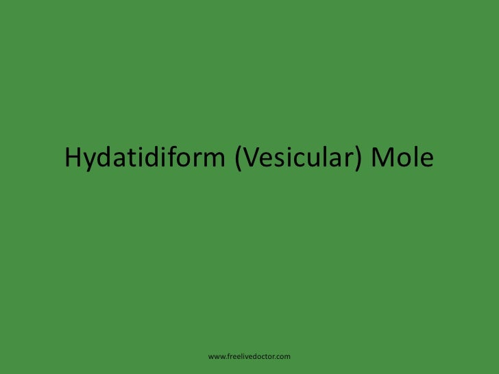 Hydatidiform (vesicular) mole
