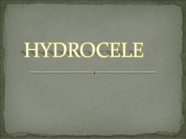 BILATERAL HYDROCELE