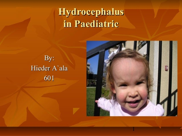 Hydrocephalus         in Paediatric    By:Hieder A`ala    601                         1