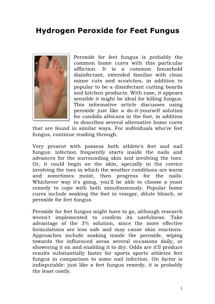 Hydrogen Peroxide for Feet Fungus                Peroxide for feet fungus is probably the                common home cures...