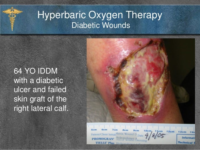 Hyperbaric oxygen therapy wound healing pictures to pin on for Table 6 hyperbaric treatment
