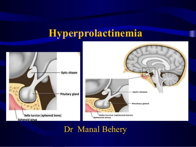 Hyperprolactinema for undergraduate