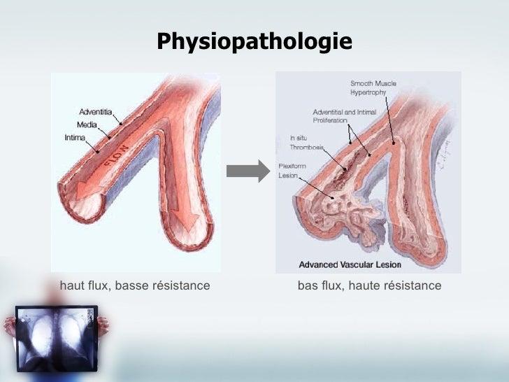 Viagra Pulmonary Hypertension Climber