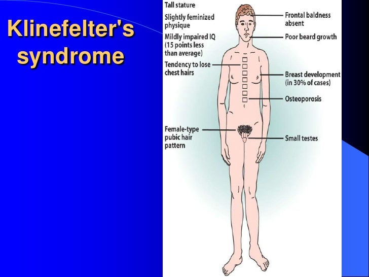 the symptoms and effects of klinefelter syndrome a genetic disorder affecting males Klinefelter syndrome is a chromosome disorder affecting males in which men with the condition have an extra x chromosome.