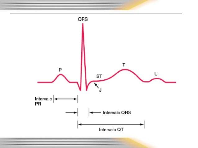 Acute Myocardial Infarction MI  Cardiovascular
