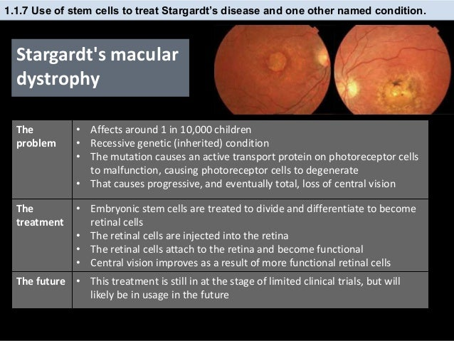 stem cells retinal disease Stem cells & retinal regeneration menu retinas from human pluripotent stem cells and to understand the complex biology of human retinal disease and explore.