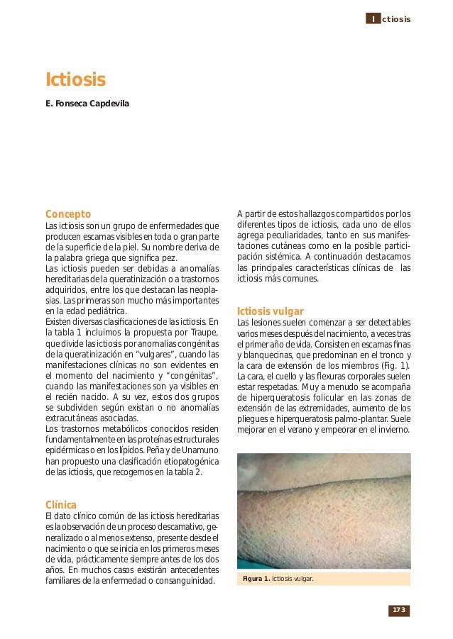 173I ctiosisConceptoLas ictiosis son un grupo de enfermedades queproducen escamas visibles en toda o gran partede la super...