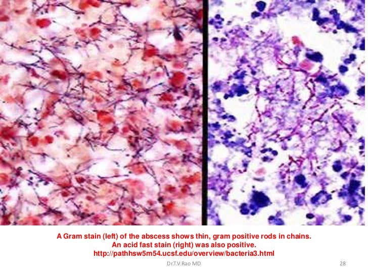 what is the difference between direct and indirect staining Comparison of indirect and direct cellular staining  the cells or with  immunoglobulins in the antibody diluent, and can also result from cross-species  reactivity.