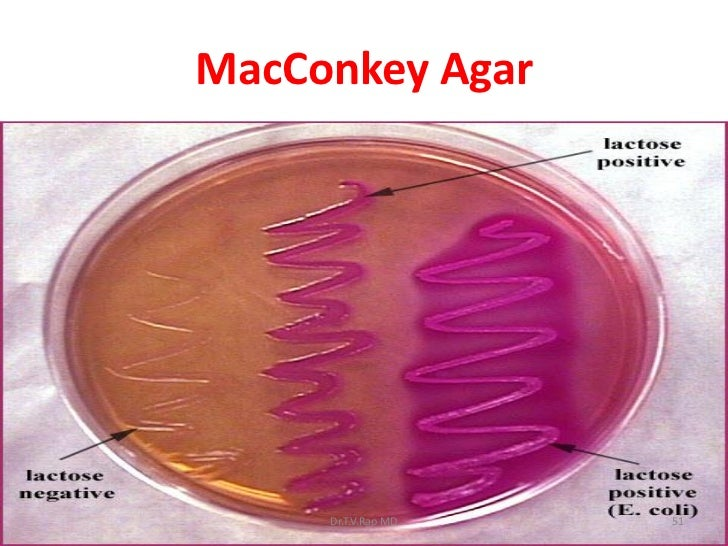how to use agar plates