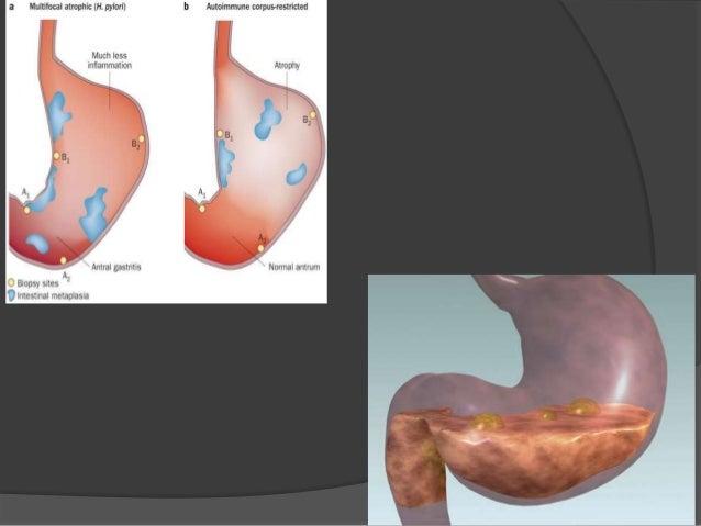 benicar and blood pressure