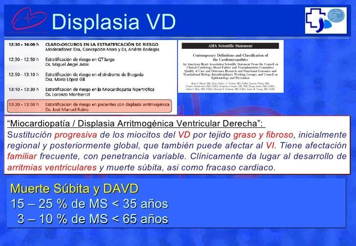 """"""" Miocardiopatía / Displasia Arritmogénica Ventricular Derecha"""":  S ustitución  progresiva  de los miocitos del  VD  por t..."""