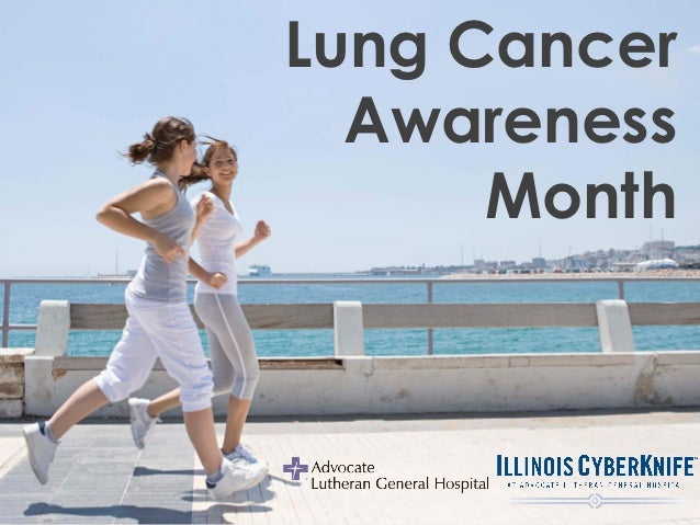 Illinois CyberKnife: Lung Cancer Awareness
