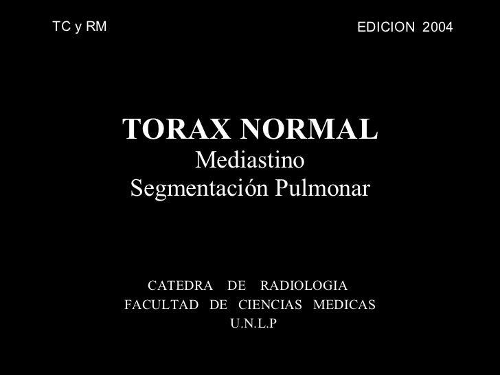 CATEDRA  DE  RADIOLOGIA  FACULTAD  DE  CIENCIAS  MEDICAS U.N.L.P TORAX NORMAL Mediastino Segmentación Pulmonar EDICION  20...