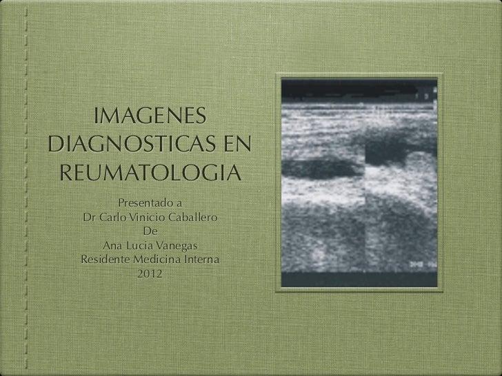 IMAGENESDIAGNOSTICAS EN REUMATOLOGIA         Presentado a  Dr Carlo Vinicio Caballero              De      Ana Lucia Vaneg...