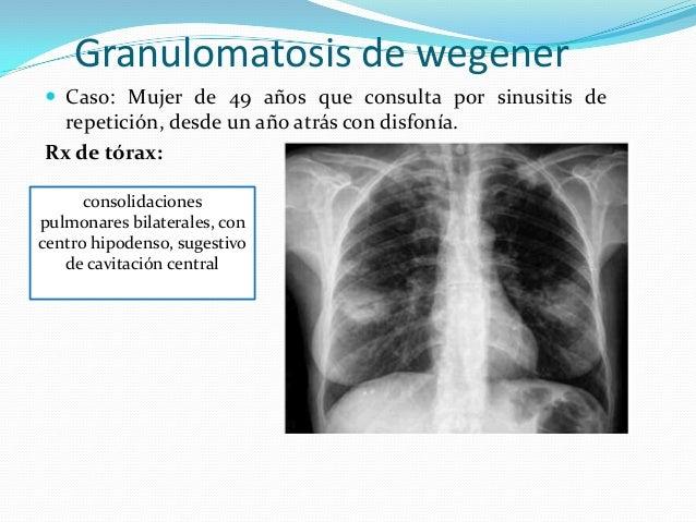 Granulomatosis de wegener Caso: Mujer de 49 años que consulta por sinusitis de  repetición, desde un año atrás con disfon...
